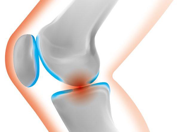関節痛をコラーゲンで和らげる